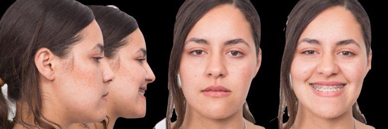 Les nouveaux concepts orthodontiques