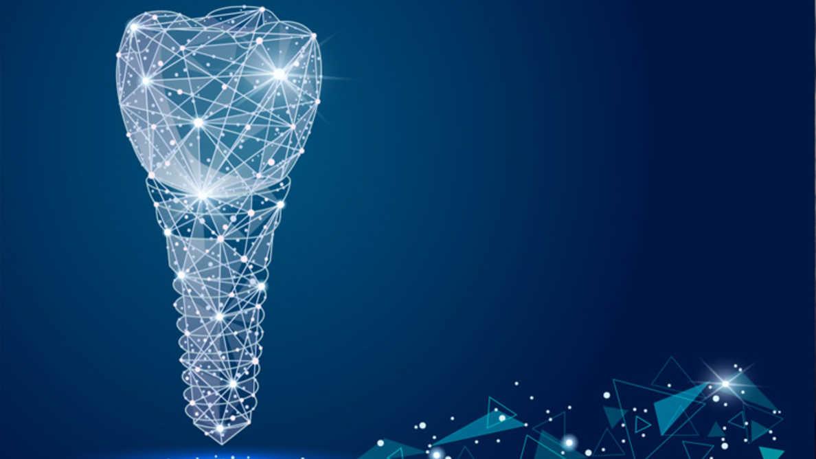 Implants individuels basés sur des procédures CAO/FAO