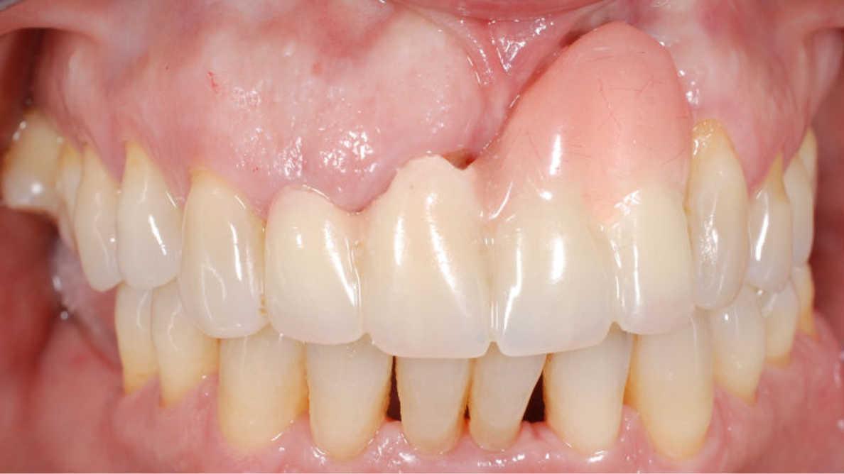 Gestion des tissus mous en cas de mauvais positionnement de l'implant dans la zone esthétique