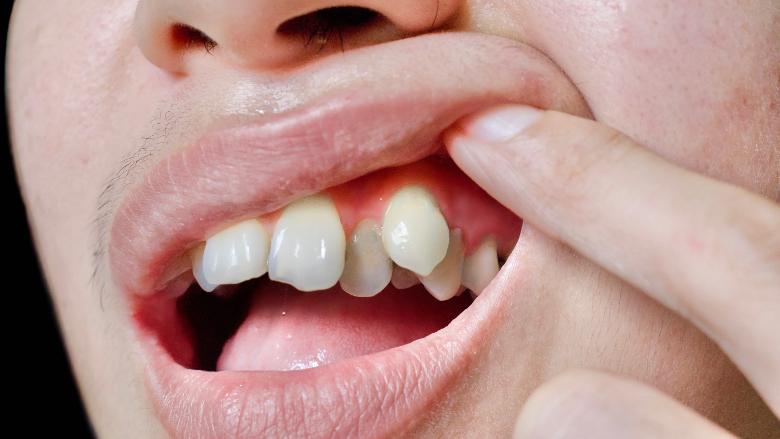 La Chine s'impose comme un marché clé de l'orthodontie et des gouttières invisibles.